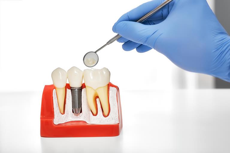 Qu'est-ce qu'un implant dentaire? Comment l'implant dentaire est-il posé?